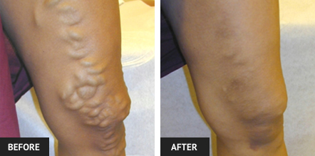Before and after picture of varicose vein care in St. Louis